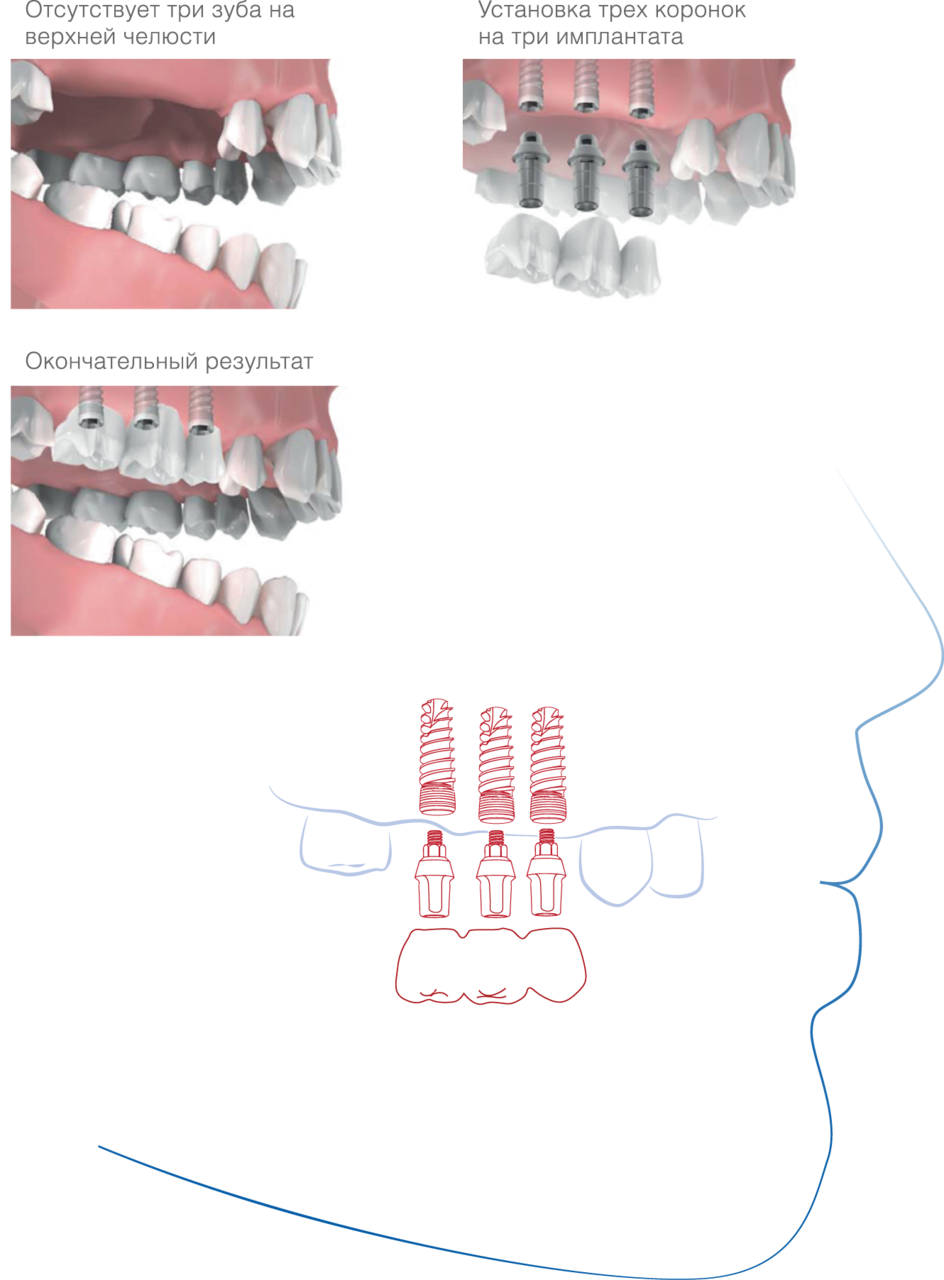 Имплантация зубов Стоматология ДЕНТАС-НВ ул. Икшинская 9