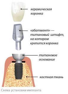 simplant1