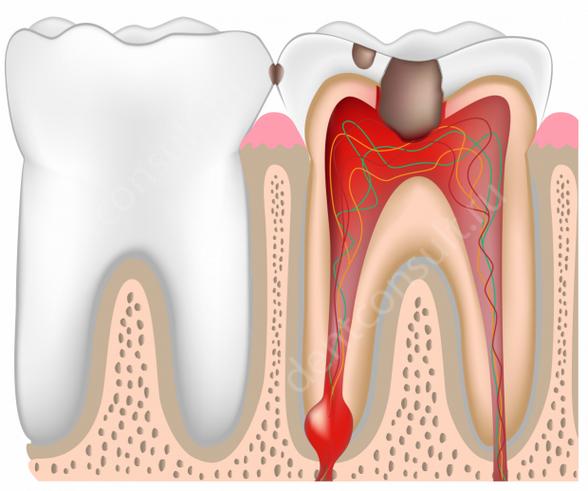 vospalenie_zubnoi_pulpi