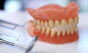 Акриловые зубные протезы