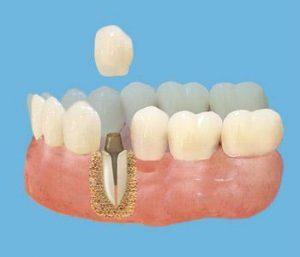 Культевая вкладка коронка Стоматология Дентас-НВ