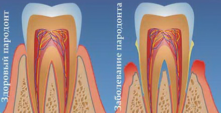 Parodontologija2