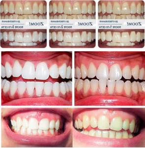 Отбеливание зубов ZOOM 3 Стоматология Дмитровское шоссе