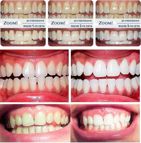Отбеливание зубов ZOOM 3 Стоматология ДЕНТАС-НВ Дмитровское шоссе