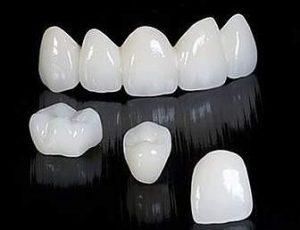 Керамические коронки стоматология Дентас-НВ