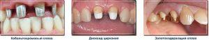Вкладка, коронка, восстановление зуба, протезирование зубов стоматология Дентас-НВ