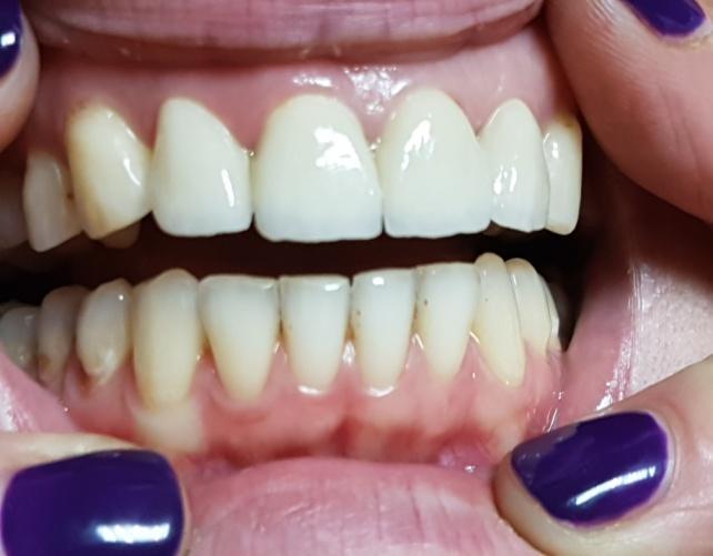лечение в стоматологии на Дмитровском шоссе Дентас-НВ