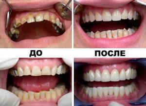 реставрация зубов наращивание зуба лечение зубов м. Селигерская