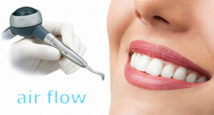 Профессиональная гигиена полости рта Стоматология ДЕНТАС-НВ