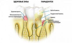 Стоматология на Икшинской