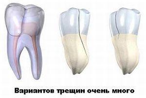 трещины на зубах 1
