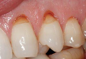 Клиновидный дефект зубов - Стоматология ДЕНТАС-НВ