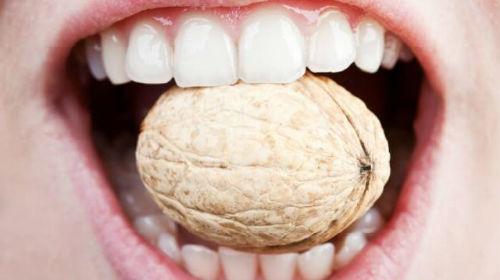 Методы лечения трещин зубов