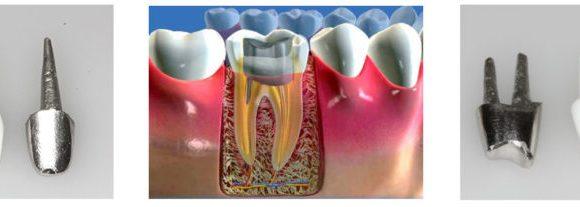 КУЛЬТЕВАЯ ВКЛАДКА- способ сохранить зуб при сильном разрушении